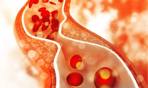 Tips You Should Know About High Blood Cholesterol